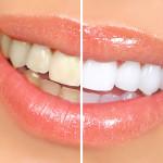 hampaiden-valkaisu_WhiteningTeeth